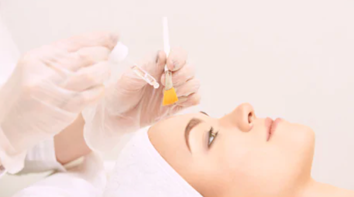 medical chemical peels